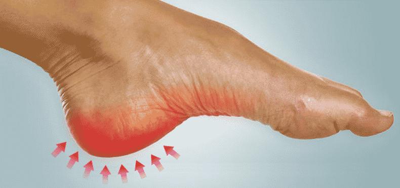 Tallonite cura e rimedi: Consigli pratici per curare il dolore al tallone
